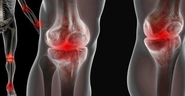 Изображение - Чем лечить суставы ног в домашних условиях bolyat-sustavy.-pomogut-naturalnye-sredstva