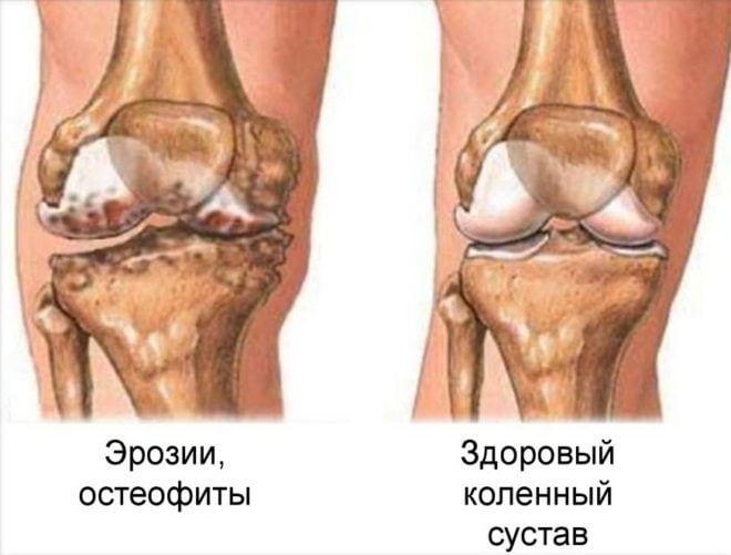 От подагры могут болеть колени thumbnail
