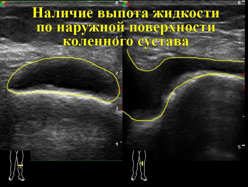 Опухло колено и болит что делать? Причины и лечение