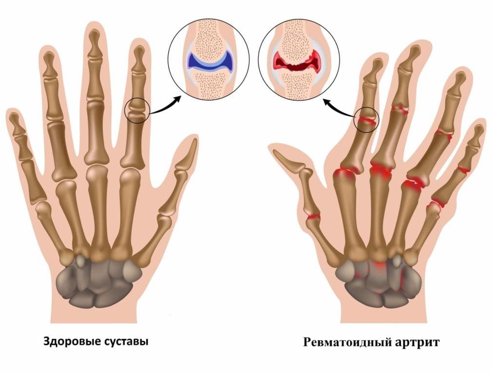 Ревматоидный артрит общий анализ крови thumbnail