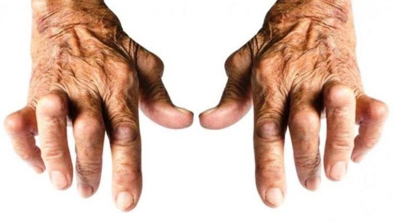 Серонегативный и серопозитивный ревматоидный артрит