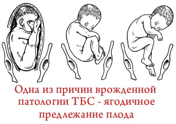 Изображение - Незрелый сустав у новорожденного nezrelost-taza-u-novorozhdennyx