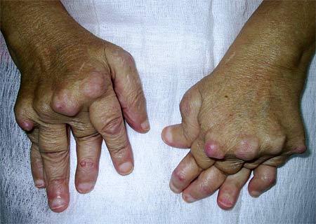 Серонегативный ревматоидный артрит симптомы диагностика и лечение