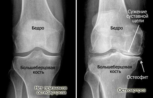 Лечение симптомы и причины артроза коленного сустава 2 степени