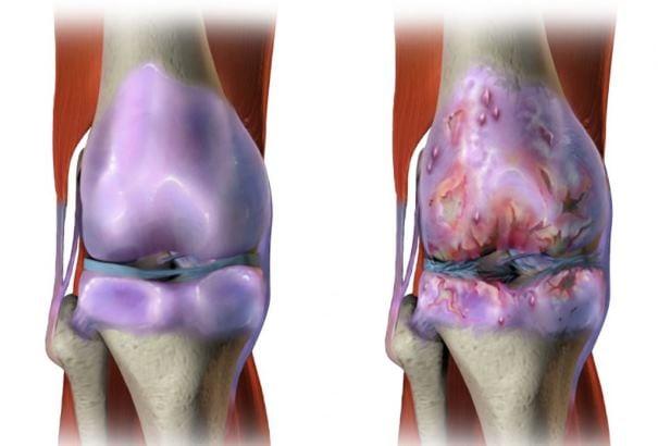 Болят ноги блуждающая боль thumbnail