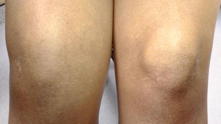 Артрит колена 2 степени лечение thumbnail