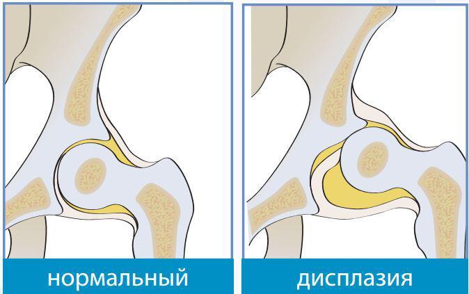 Недоразвитость тазобедренных суставов у новорожденных: лечение (фото)