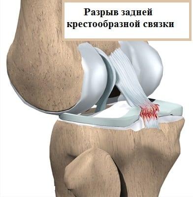 Изображение - Разрыв задней крестообразной связки коленного сустава симптомы povrezhdenie-zks