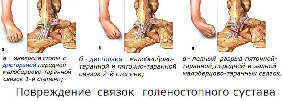 Боль суставов ног эффективное лечение thumbnail
