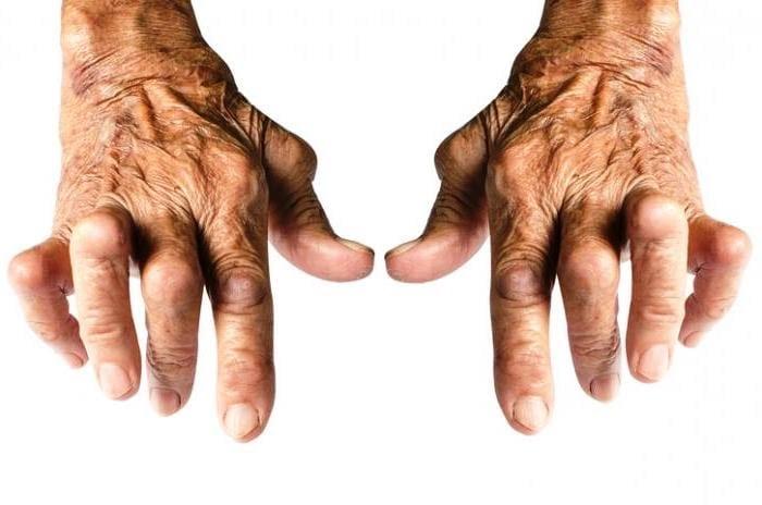 Cеропозитивный и серонегативный ревматоидный артрит в чем разница