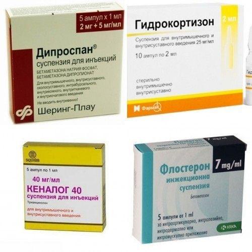 Изображение - Деформирующий артрозо артрит тазобедренного сустава ukolivkolenniysustavpriartrozepreparatii_8F501F42