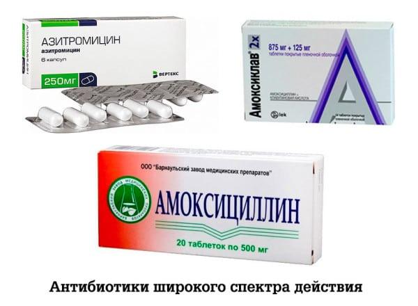 Болят лимфоузлы под челюстью лечение