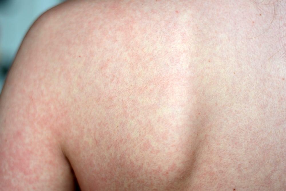 Болит спина можно делать ванны thumbnail