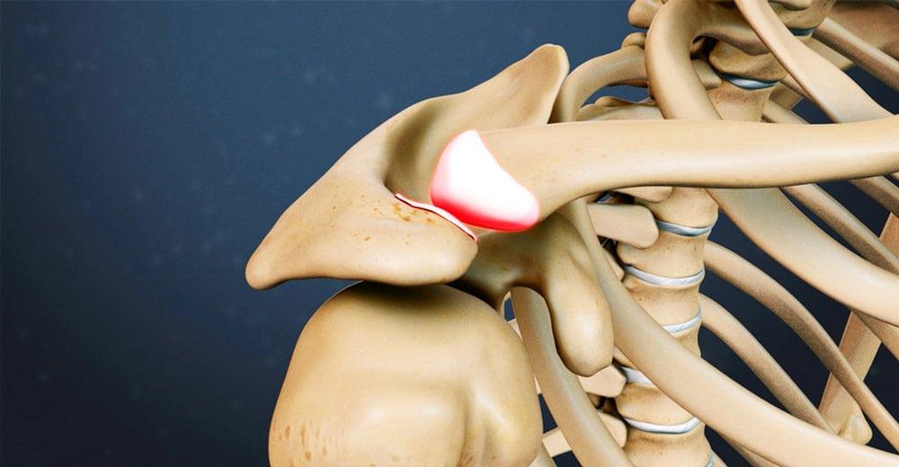 Изображение - Импиджмент левого плечевого сустава 1438527538_lechenie-bursita-plechevogo-sustava