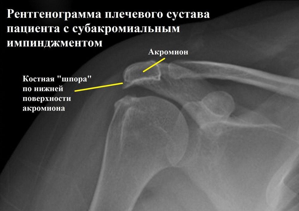 Изображение - Импиджмент левого плечевого сустава 2-4