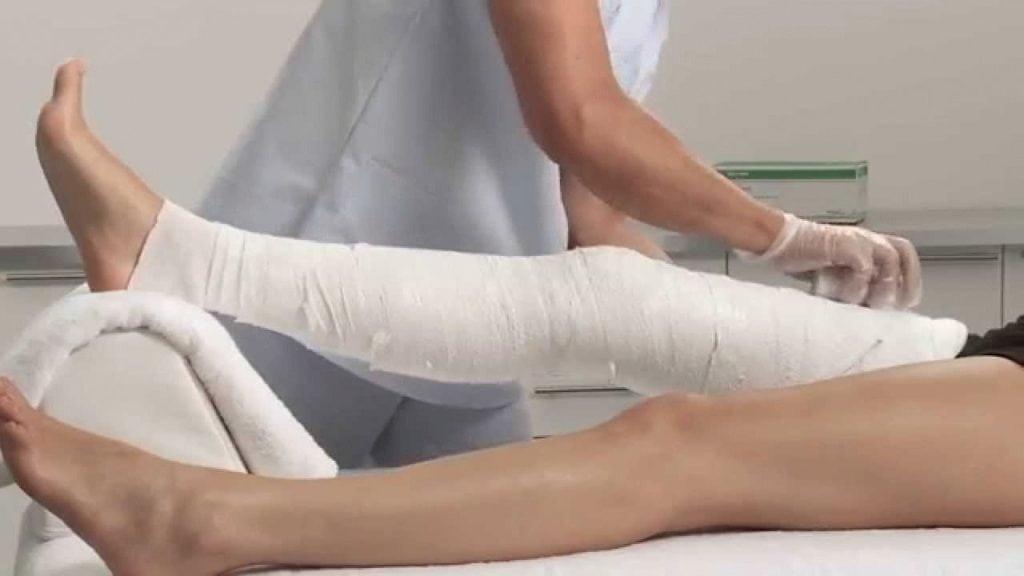 Наложение гипса на коленного сустава
