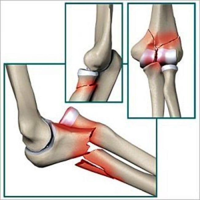 Изображение - Признаки перелома в локтевом суставе Vidy-perelomov-loktevogo-sustava