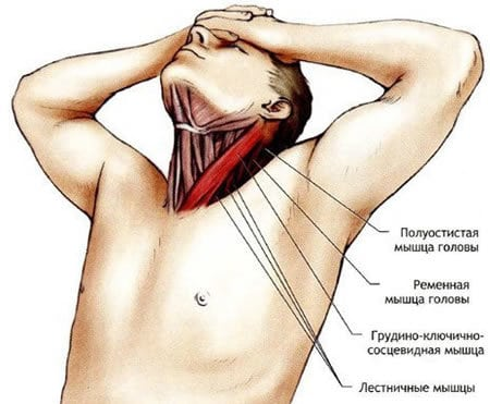 Что помогает от растяжения мышц шеи