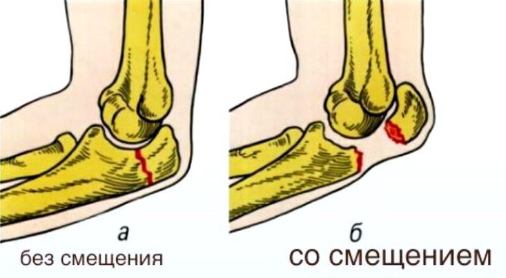 Изображение - Признаки перелома в локтевом суставе lokot