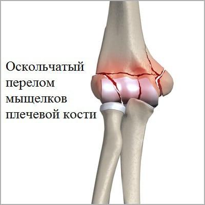 Изображение - Признаки перелома в локтевом суставе oskolchatyi-perelom-myschelkov-plecha