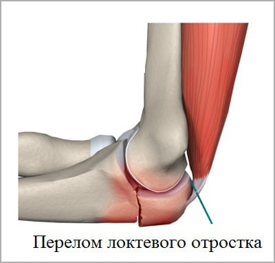 Изображение - Признаки перелома в локтевом суставе perelom-loktevogo-otrostka