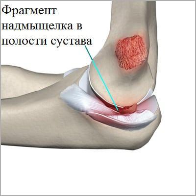 Изображение - Признаки перелома в локтевом суставе perelom-nadmyschelka