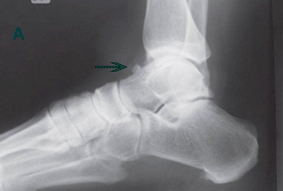 Изображение - Голеностопный сустав щелчки rentgen-osteofita-tarannoiy-kosti