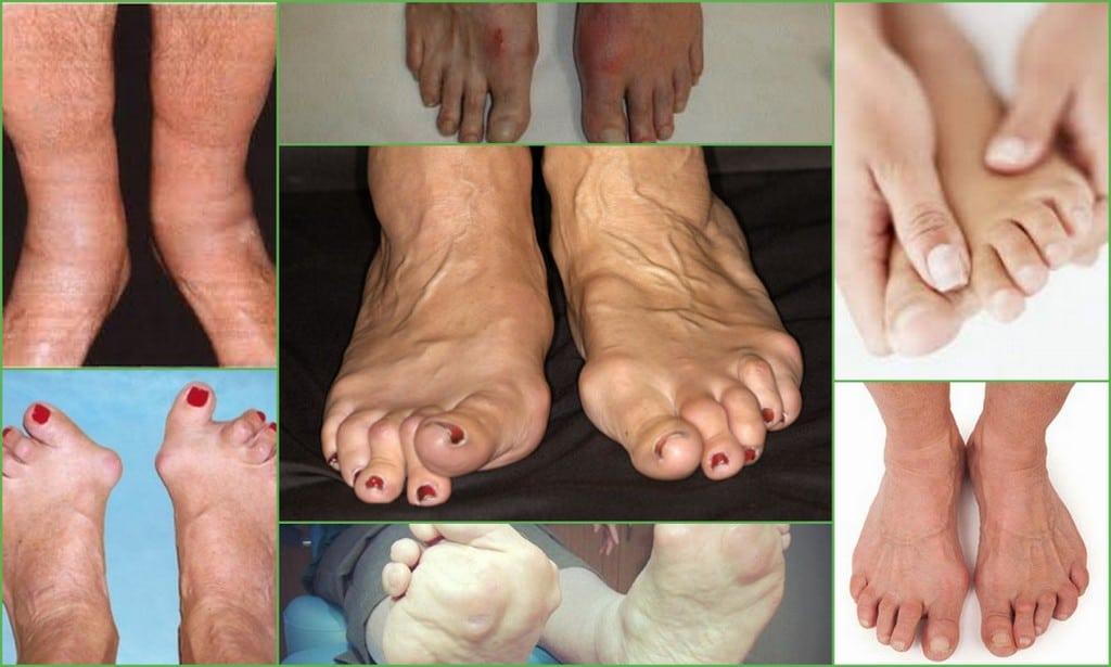 Боль суставов ног эффективное лечение
