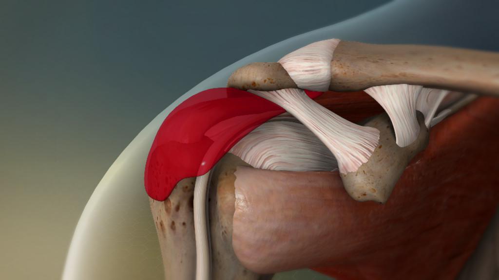 Изображение - Субакромиальный бурсит левого плечевого сустава 2314129
