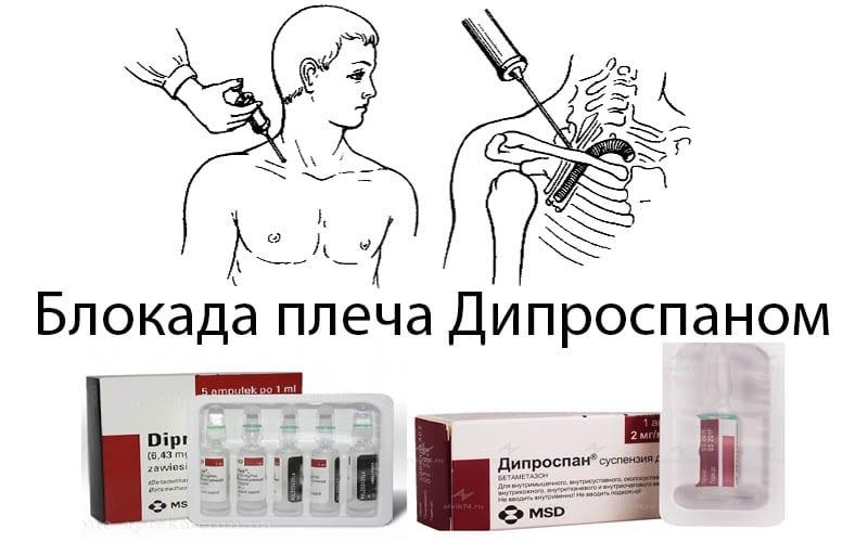 Периартикулярная блокада плечевого сустава дипроспаном