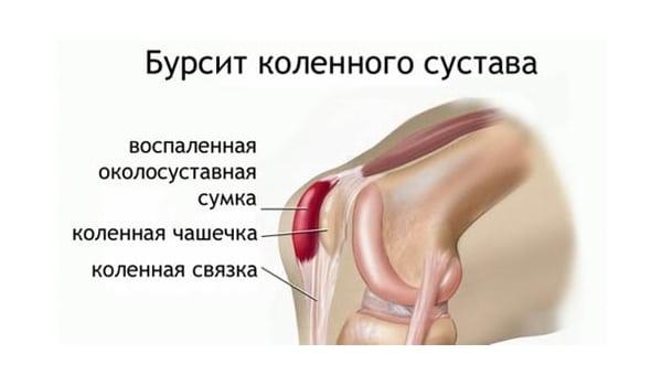 Изображение - Боль и жжение в коленном суставе bursit-kolena