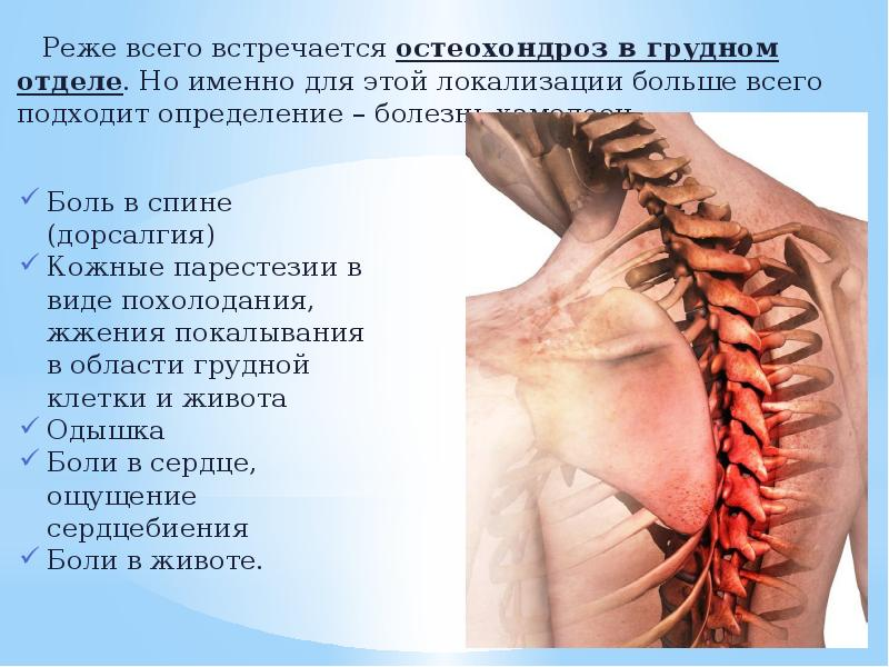 Лечение остеохондроза с корешковым синдромом