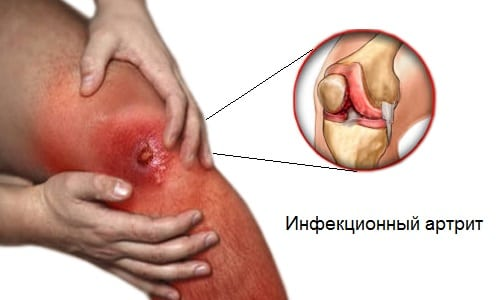 Ангина осложнения на суставы