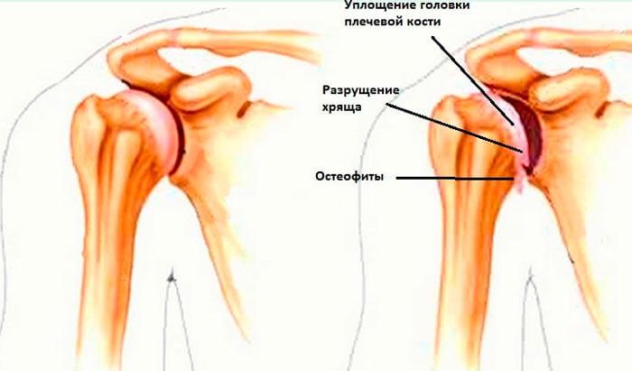Изображение - Остеохондроз правого плечевого сустава osteofity-na-plechevom-sustave