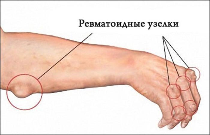 Изображение - Как проявляется артрит суставов revmatoidnye-uzelki-1