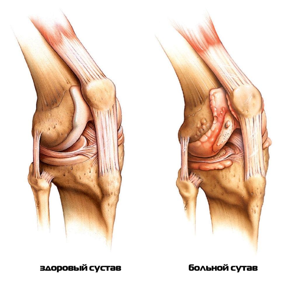 Изображение - Боль и жжение в коленном суставе revmatoidnyj-artrit-kolena