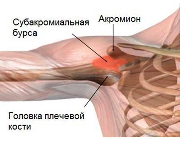 Изображение - Артроз субакромиального сустава subdeltovidnyj-bursit-plechevogo-sustava-razvitie