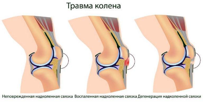 Изображение - Боль и жжение в коленном суставе travma-kolena