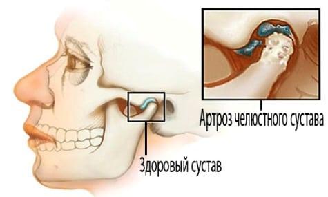 Изображение - Височно нижнечелюстной сустав болит с одной стороны artroz-vnchs