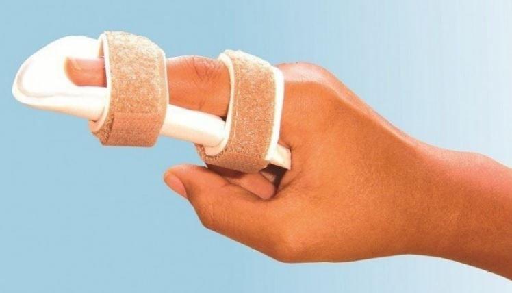 Лангетка при переломе локтевого сустава
