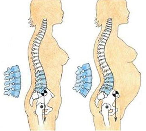 Остеохондроз и беременность как его можно лечить в этот период