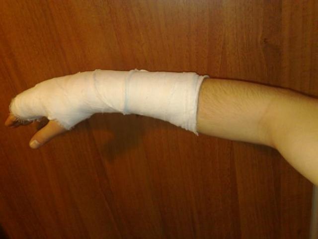 Лангетка при переломе локтевого сустава thumbnail