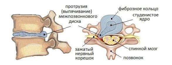 Шейная грыжа протрузия лечение