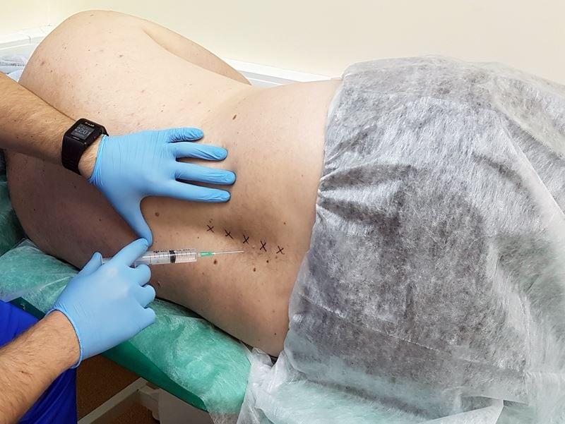 Анестезия при грыже поясничного отдела позвоночника