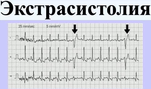 Болезни позвоночника и аритмии сердца