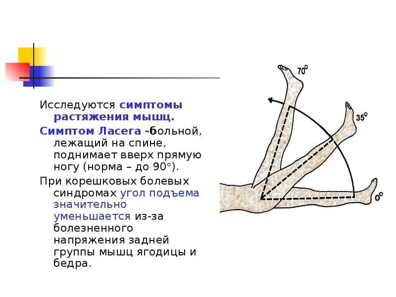 Остеохондроз 2 степени поясничного отдела лфк