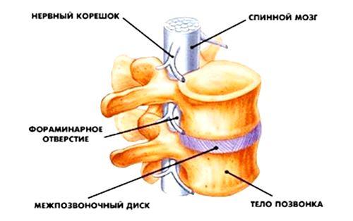 Задняя фораминальная грыжа поясничного отдела позвоночника