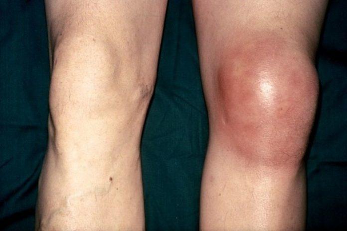 Хондропатия коленного сустава у подростков thumbnail