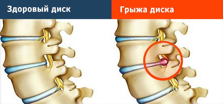 Лечение и профилактика остеохондроза и межпозвонковых грыж