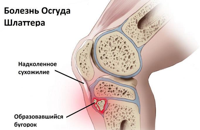 Хондропатия коленного сустава у подростков